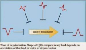 lead-diagram
