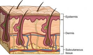 Burns diagram 4
