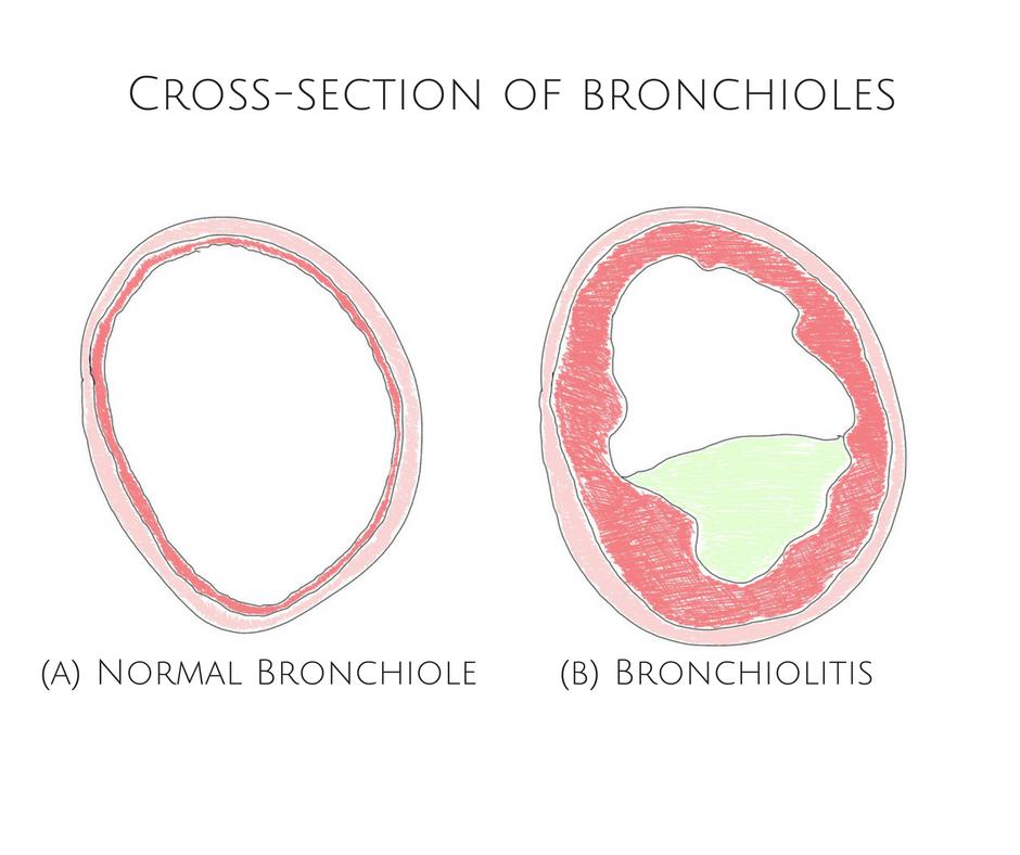 bronchiolitis