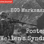 EMJ blog – ECG Marksmanship: Posterior Wellen's Syndrome